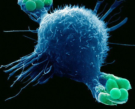 Macrophage engulfing bacteria as part of the immune system's response to infection
